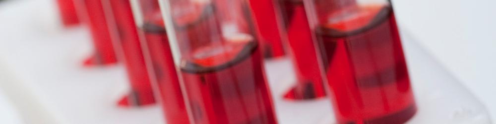 Blutuntersuchung - Vollblut / Plasma / Serum